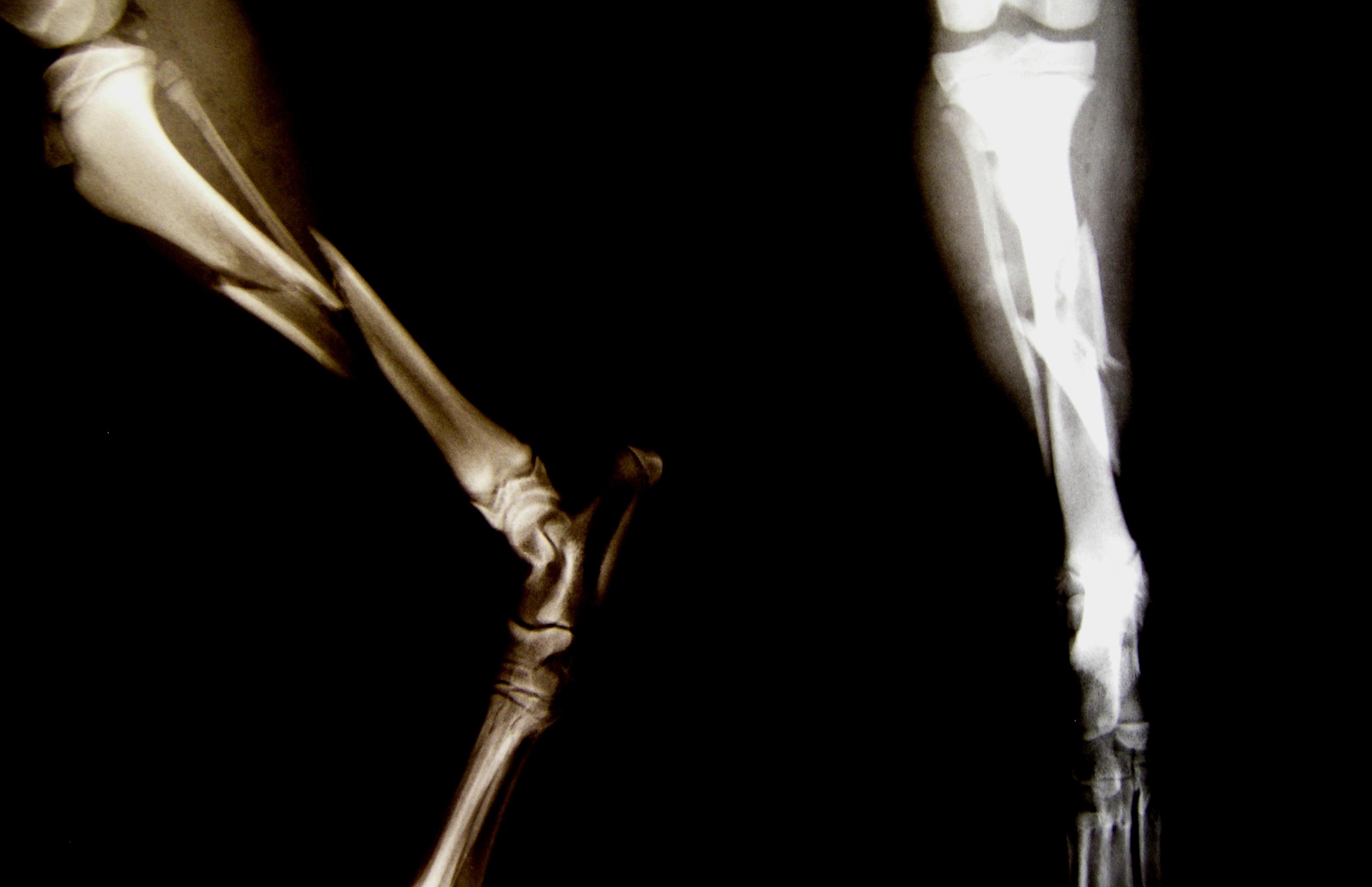 Tentang Kaki-kaki yang Patah Itu....